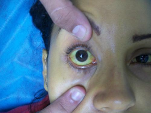 Гемолитическая желтуха у взрослых и детей: стадии, признаки, методы лечения