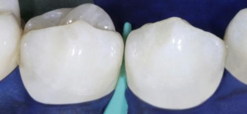 Сепарация зубов. Secondary Navigation Menu