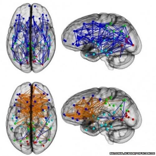Как устроен женский мозг. Мужской и женский мозг устроены по-разному