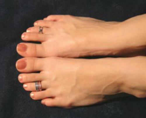 Почему незамужним нельзя носить кольцо на безымянном пальце