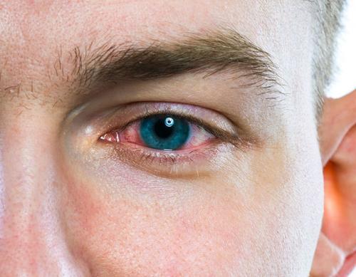 Как распознать наркомана который нюхает. Признаки наркотической зависимости