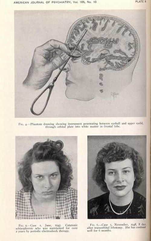 Доктор Фриман. Лоботомия. Был такой врач, отец техники трансорбитальной лоботомии, невролог Уолтер Дж. Фриман.)